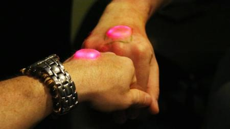 3059769-inline-i-2-biohackers-implant-chips-and-magnets-under-their-skin-but-how-useful-are-they