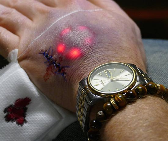 Biohackers-LED1